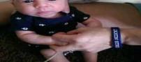 نوزاد یک ساله بدون جمجمه دنیا را متحیر کرد (عکس)