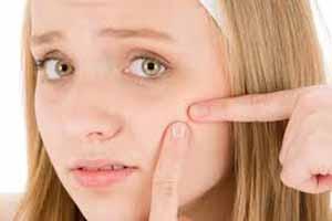 درمان جوش های صورت مثل پزشکان