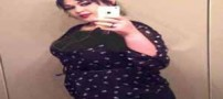 اندام دیدنی دختر 470 کیلویی پس از لاغری (عکس)