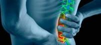 آیا استراحت کامل برای کمر درد مضر نیست؟