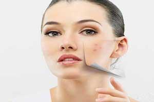 آموزش محو کردن جوش صورت با آرایش