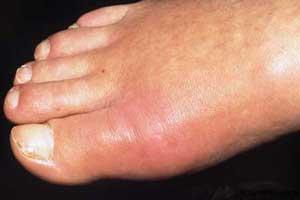 هفت مشکل پوست پا و رفع زیبایی آن