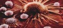 ویروسی که با سرطان سینه مرتبط است