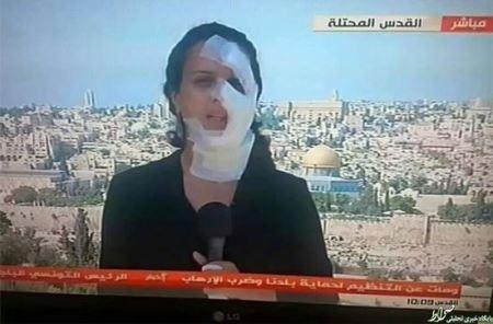 چهره عجیب خبرنگار زن در پخش زنده  اخبار (عکس)