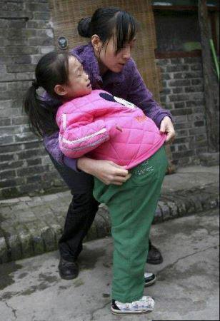 دختر عجیب 4 ساله با شکم یک متری (عکس)