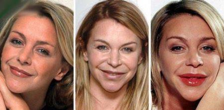 خانم های بازیگری که با جراحی زشت شدند (عکس)