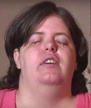 خانمی که عمداً خودش را کور کرد (عکس)