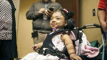 دختری بدون استخوان با بزرگترین راز پزشکی ! (عکس)