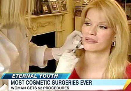 زنی با رکورد جراحی زیبایی به چهره دلخواهش رسید (عکس)
