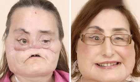 عکس های وحشتناک ترین حراجی های زیبایی صورت (18+)