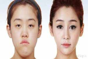 چهره های زیبا و جراحی شده دختران کره جنوبی (عکس)