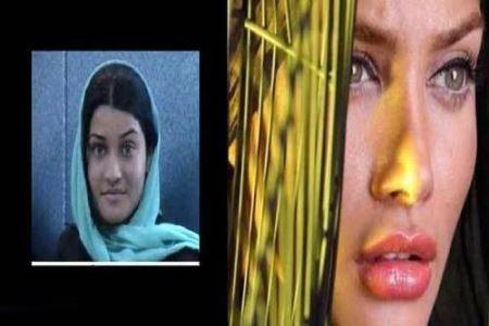 عکس های بازیگران زن ایرانی قبل و بعد از جراحی زیبایی