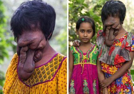 صورت عجیب دختری بدون چهره ! 16 + عکس