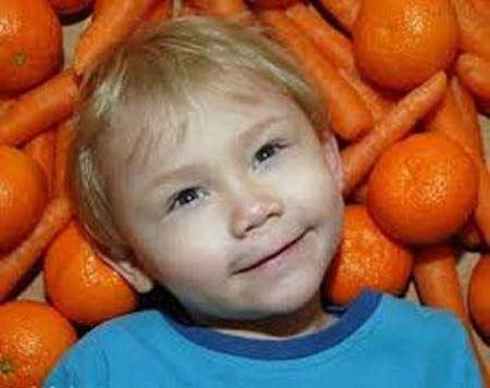 پسری که با خوردن میوه های رنگی تغییر رنگ می دهد ! + عکس