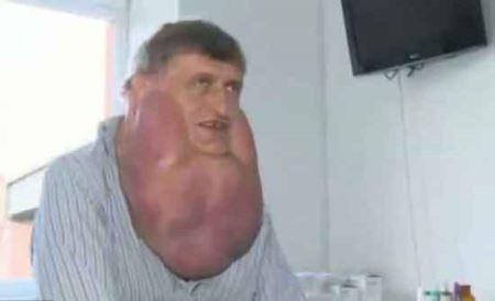 مردی عجیب با گردنبندی از گوشت + عکس
