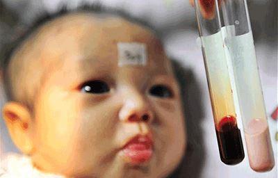 عجیب ترین نوزاد دنیا با خون صورتی + عکس