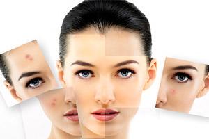 در مورد پیلینگ یا لایه برداری از پوست