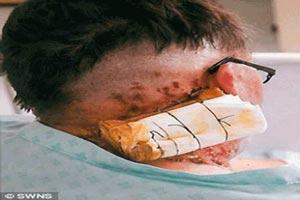 اسید پاشی هولناک به داور معروف + عکس