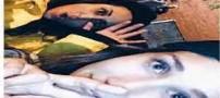 عمل زیبایی بینی دختران ایرانی سوژه خنده عربها شد + عکس