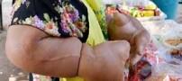زنی با عجیب ترین دست های دنیا (عکس)