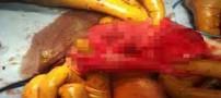 29 آهنربا و باتری از شکم کودک 3 ساله خارج شد (عکس)