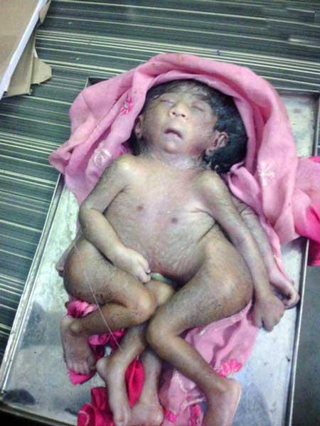 خدای جدید هندی ها این نوزادِ انسان چهارپاست (عکس)