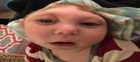 شکل عجیب نوزادی 15 ماهه با بیماری کوچکی جمجمه (عکس)