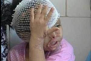 یک سطل اسید، آینده این دختر کوچولو ناز را نابود کرد