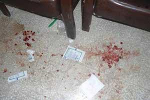 ضرب و شتم معلم دبستان توسط پدر یک دانش آموز (عکس)