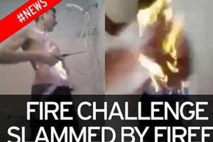بچه 11 ساله برای جلب توجه خودش را سوزاند (عکس)