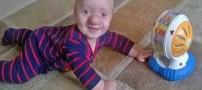بچه ای شبیه پینوکیو که مغزش در دماغش رشد می کند (عکس)