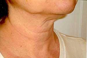 از افتادن پوست گردن چگونه جلوگیری کنیم؟