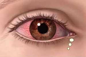 بیماری چشمی یوئیت + علائم و راه درمان