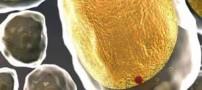 علائم مسموم شدن بدن چیست؟