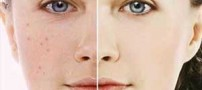 چرا در میانسالی صورت مان جوش می زند؟ + درمان