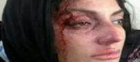 حمله اراذل و اوباش پشت چراغ قرمز به مهناز افشار حقیقت دارد؟ (عکس)