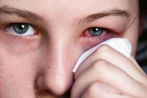 خانم هایی که حساسیت به مواد آرایشی دارند بخوانند