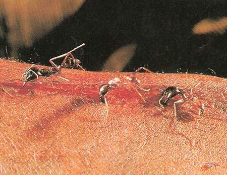 مورچه های شگفت انگیزی که زخم ها را بخیه میزنند (عکس)