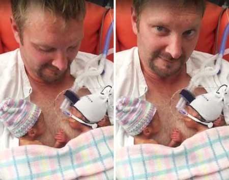 دوقلو هایی که در هنگام تولد دست هم را گرفته بودند (عکس)