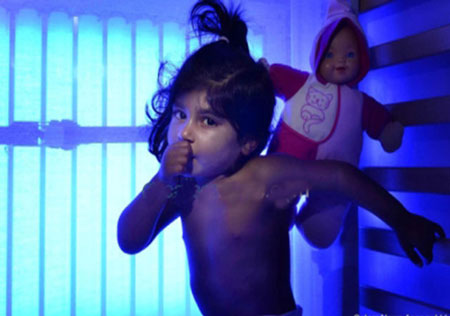 اگر نور آبی به این دختر دو ساله نتابد میمیرد (تصاویر)