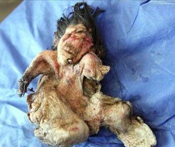 جنین مُرده در شکم پسر 22 ساله ایرانی (عکس)