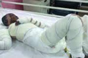 دختری که با اسید دستگاه تناسلی نامزدش را نابود کرد (عکس18+)