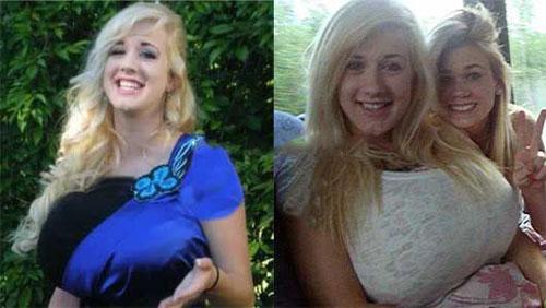 رشد غیرعادی اندام جذاب دختر 17 ساله در سن بلوغ (عکس)