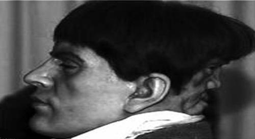 مردی که در پشت سرش یک صورت شیطانی دارد (عکس)
