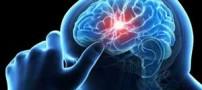 7 مورد از علائم خطرناک سکته مغزی که نباید نادیده گرفت