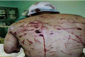 کنده شدن نصف پای این مرد ایرانی در اثر حمله گرگ (عکس18+)