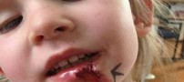 عجیب ترین دختر دنیا که یک ابر انسان واقعی است (عکس)