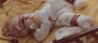 نوزادی که در ظرف روغن در حال سرخ شدن بود زنده ماند (عکس)