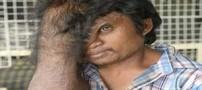 چهره عجیب مردی با پیشانی ذوب شده (عکس)