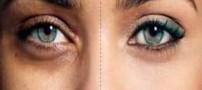 آشنایی با علت های تیرگی دور چشم و درمان آن